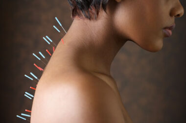 A look at acupunture